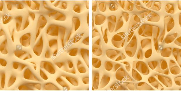 Bone Texture Spongy Structure